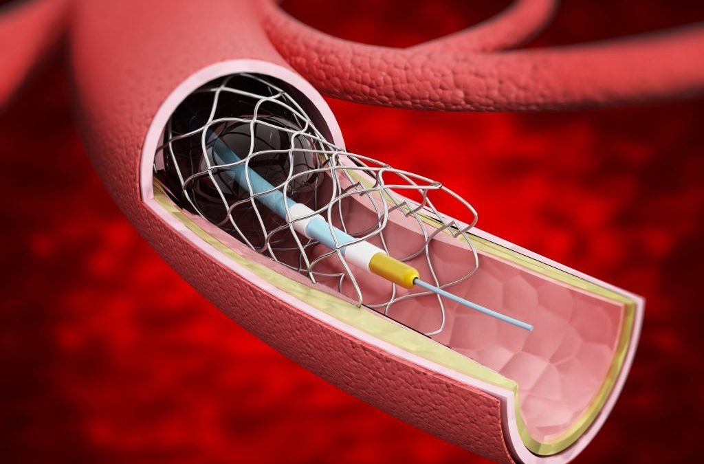 What is Angiography and Angioplasty?